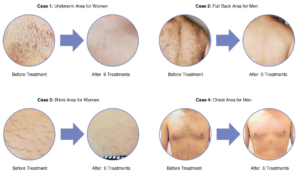 Lasers in Plastic Surgery - Best Laser Hair Removal Clinic in Lahore
