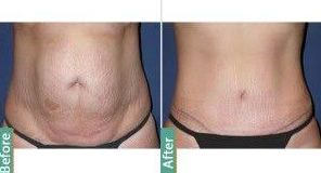 Tummy Tuck Surgery in Lahore