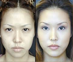 Eyelid Surgery cost in Lahore