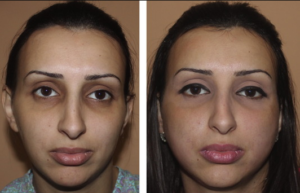 Facial fat grafting bruising