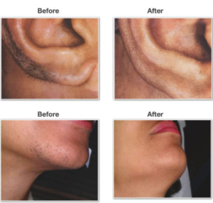 laser hair removal for women in lahore