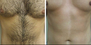 laser treatment for hair removal cost in lahore