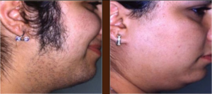 permanent laser hair removal in lahore