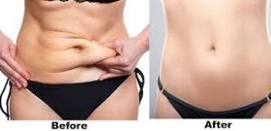 Tummy tuck in Lahore